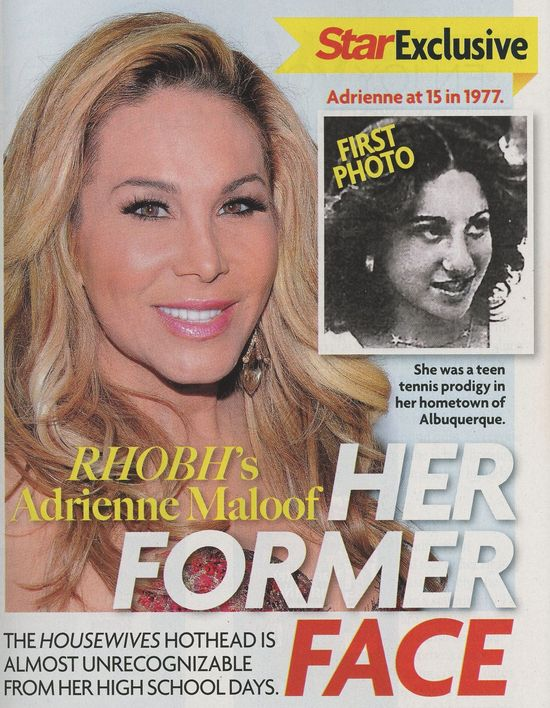 Adrienne-Maloof-before-nose