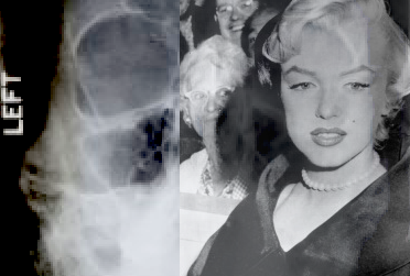 Marilyn-Monroe-X-rays