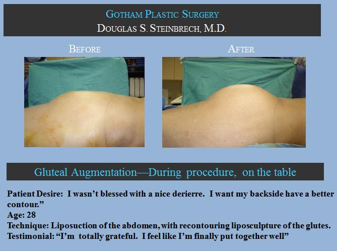 Ass-implants-glutes-surgery